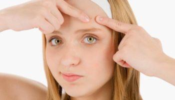 Как избавиться от прыщей на лице и теле в домашних условиях